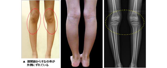 脛骨外側変位||O脚 X脚|幼児、小児を中心とした(中・高校生も対応可能)、内股、X脚、O脚を手術せずに矯正します。