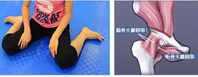 大腿骨内回転の原因