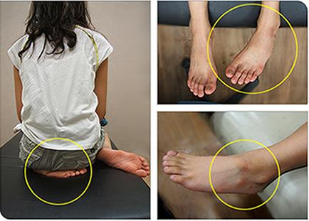 11歳であるこの子は小さい時から習慣的に左足をお尻で敷いて座ってきた結果、右足は正常な脛骨捻転であることに対して左脚は重度の脛骨内捻転であることがわかります。この様に生活習慣は脛骨の成長と発達に大きな影響を与えます