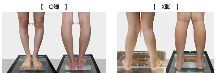 O脚 X脚||O脚 X脚|幼児、小児を中心とした(成人も対応可能)、内股、X脚、O脚を手術せずに矯正します