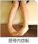 2.脛骨内捻転